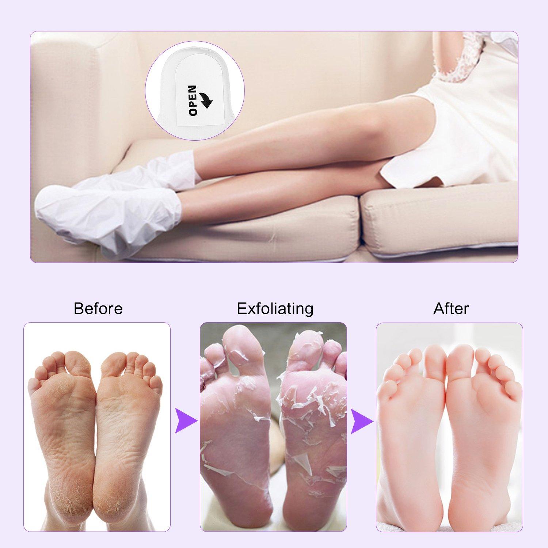 Himaly Fuß Maske 2 Paar Fuß Peeling Maske Socken Schwielen und abgestorbene Haut Entferner Baby Hornhaut Fussmaske zur Hornhautentfernung Fußpeeling