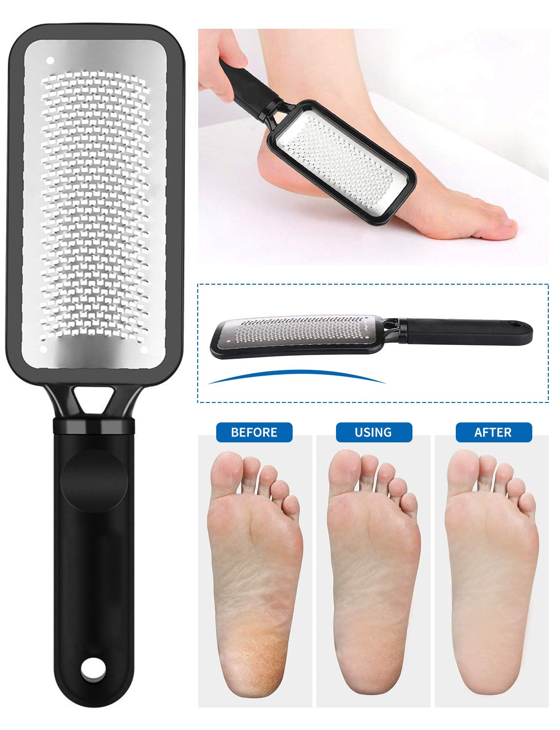 Colossal Foot Rasp Foot File and Callus Remover, 3 in 1 Foot Care Pedicure Set Tool for Hard Skin Cuticle Remover, Can be Used on Both Wet and Dry Feet, Surgical Grade Stainless Steel File: Beauty