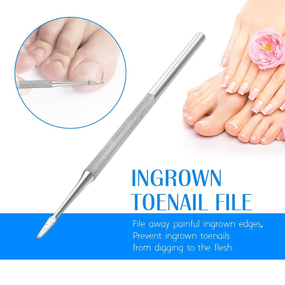 Amazon.com : Ingrown Toenail File and Spoon Nail Cleaner Set ...