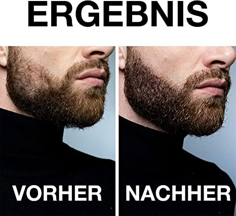 vinsk Bartroller Bartroller für kräftigen /& vollen Bart Bartroller zur