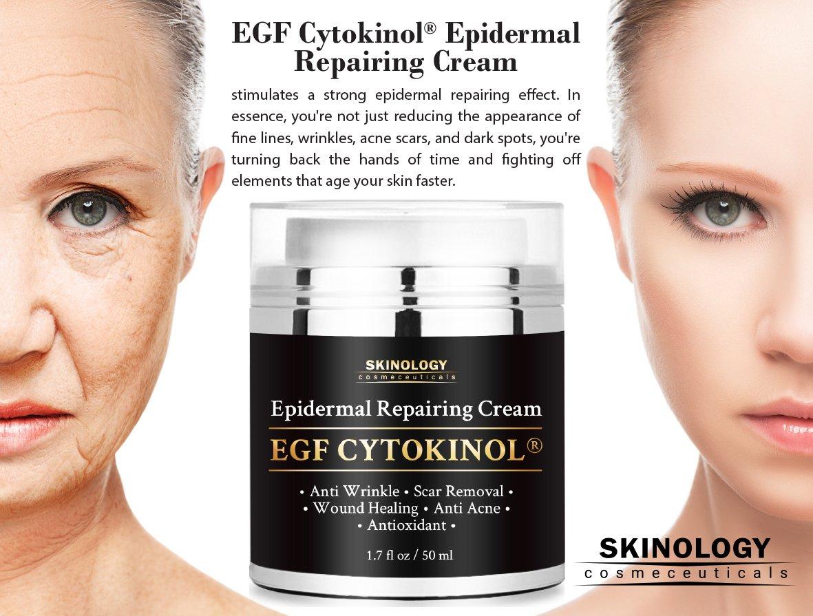 best dark spot reduction cream