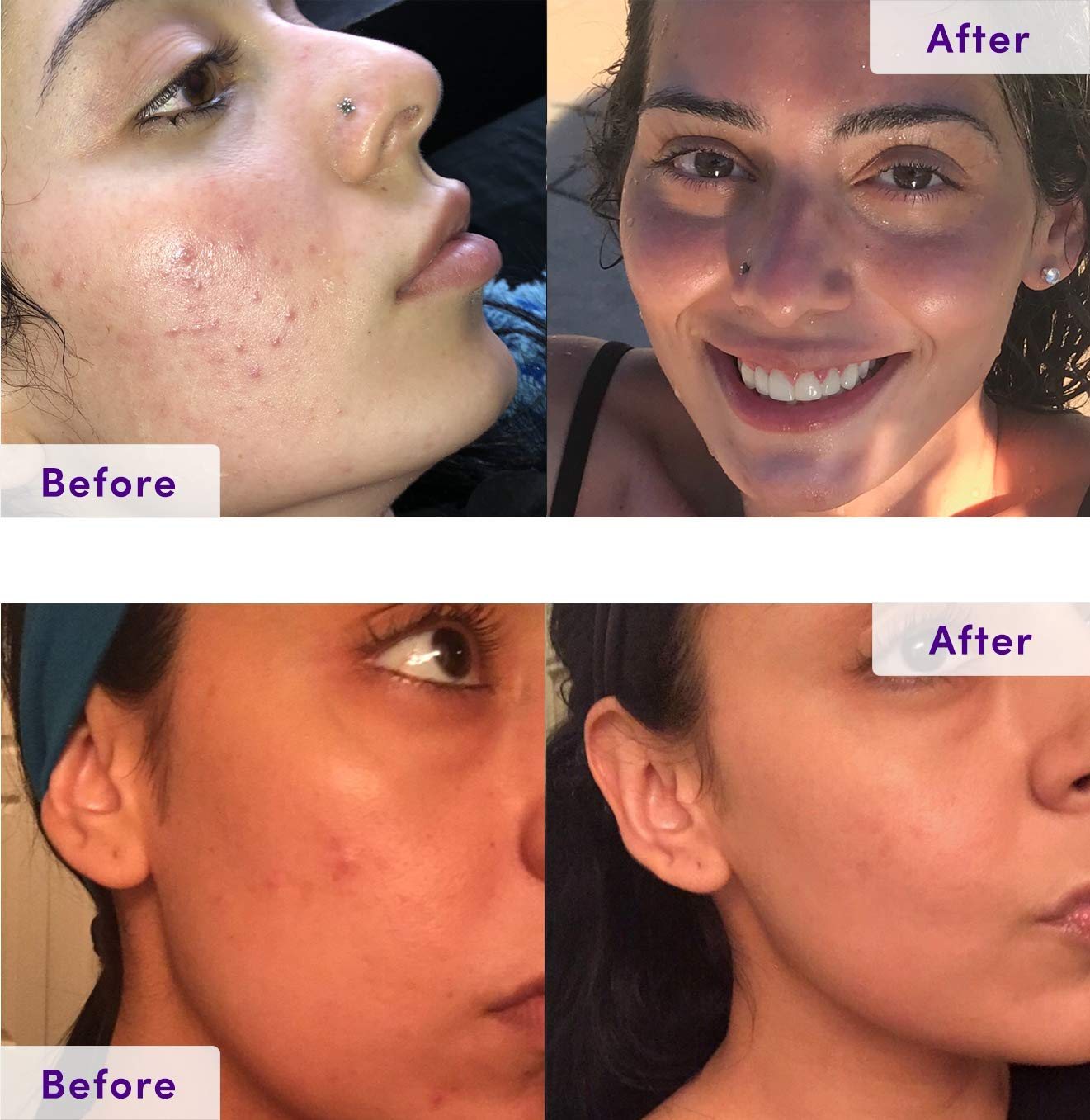 NxN Acne Treatment Kit 4-Step Clear Skin System with Salicylic Acid, Probiotics, Sulfer & Natural Retinols, Control Blemishes & Breakouts, Face Care Solution Set for All Skin Types Including Sensitive: Beauty