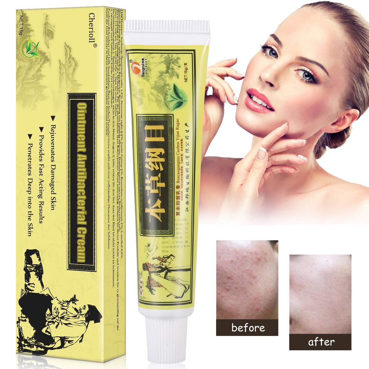 Psoriasis Treatment,Psoriasis Cream for Dermatitis, Eczema,Natural Chinese Herbal Cream Eczema Dermatitis Psoriasis Vitiligo Skin Disease Treatment,1 Tube/Box (1) by Cherioll