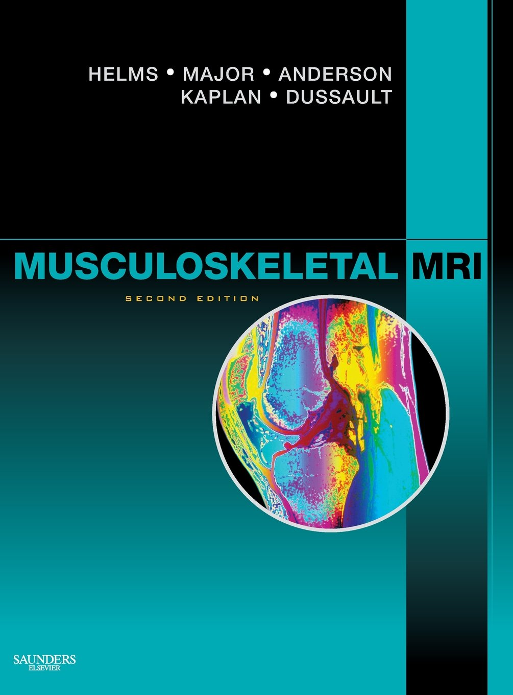 Buy Musculoskeletal MRI Book Online at Low Prices in India ...