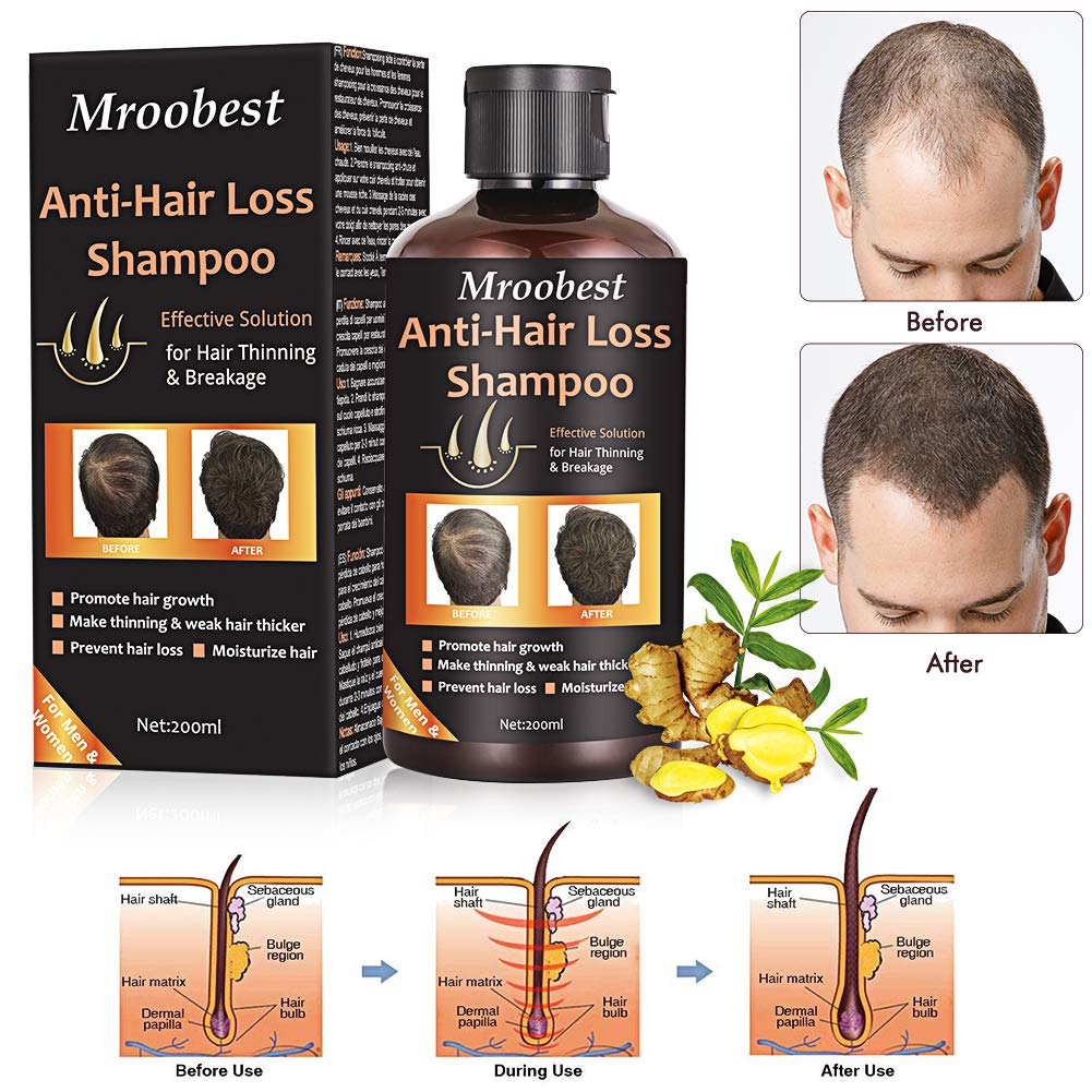 Anti-Hair Loss Shampoo, Hair Regrowth Shampoo, Natural Old Ginger Hair Care Shampoo Effective Solution for Hair Thinning & Breakage - Organic Hair Regrowth.Products for Men & Women