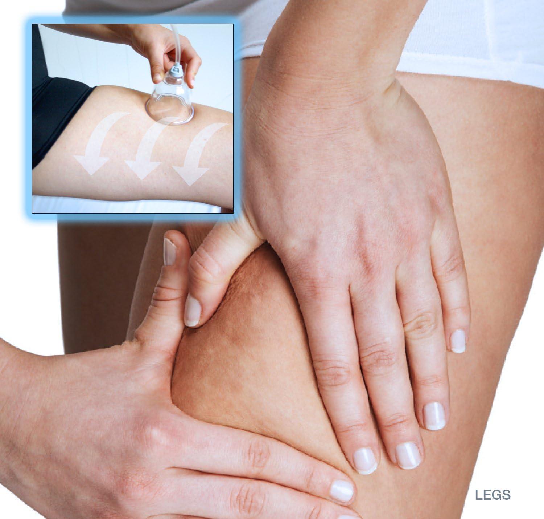 Los aparatos de masaje al vacío (vacumterapia) más vendidos