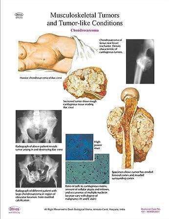 Dbios Muskel-Skelett-Tumoren und Tumor Wie Condition-3 Higher Wall ...