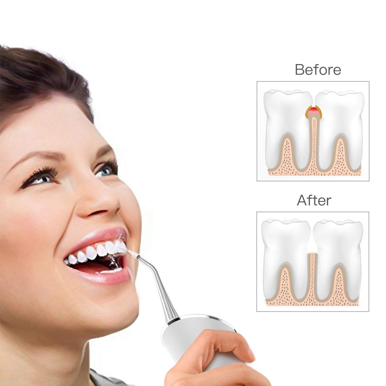 Idropulsore Dentale, Irrigatore Dentale Water Flosser Irrigatore Orale USB Approvato Dalla FDA Irrigatore Orale Portatile IPX7 Dual Ricaricabile e Impermeabile Waterjet Professionale Idrogetto Dentale con 3 Modalità e 3 Ugelli da Utilizzars