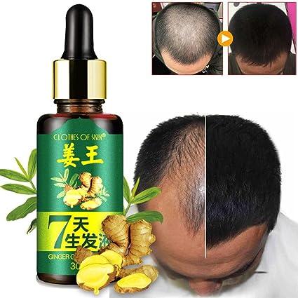 Alopecia Tratamiento de pérdida de cabello, suero para el crecimiento del cabello, líquido de suero, esencia