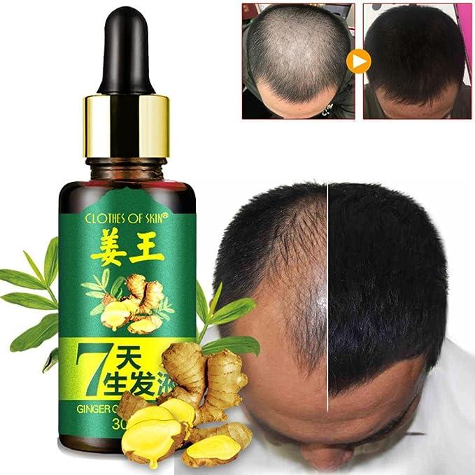 Alopecia Tratamiento de pérdida de cabello, suero para el ...
