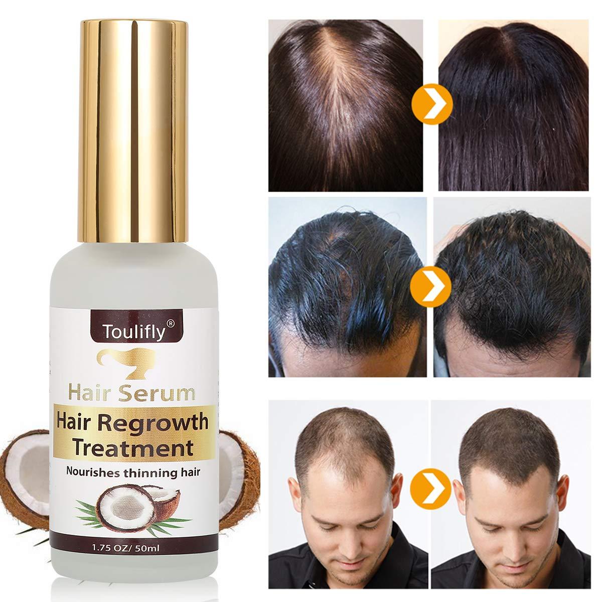 USpicy - Cepillo alisador de cabello (eléctrico, para pelo largo): Amazon.es: Salud y cuidado personal