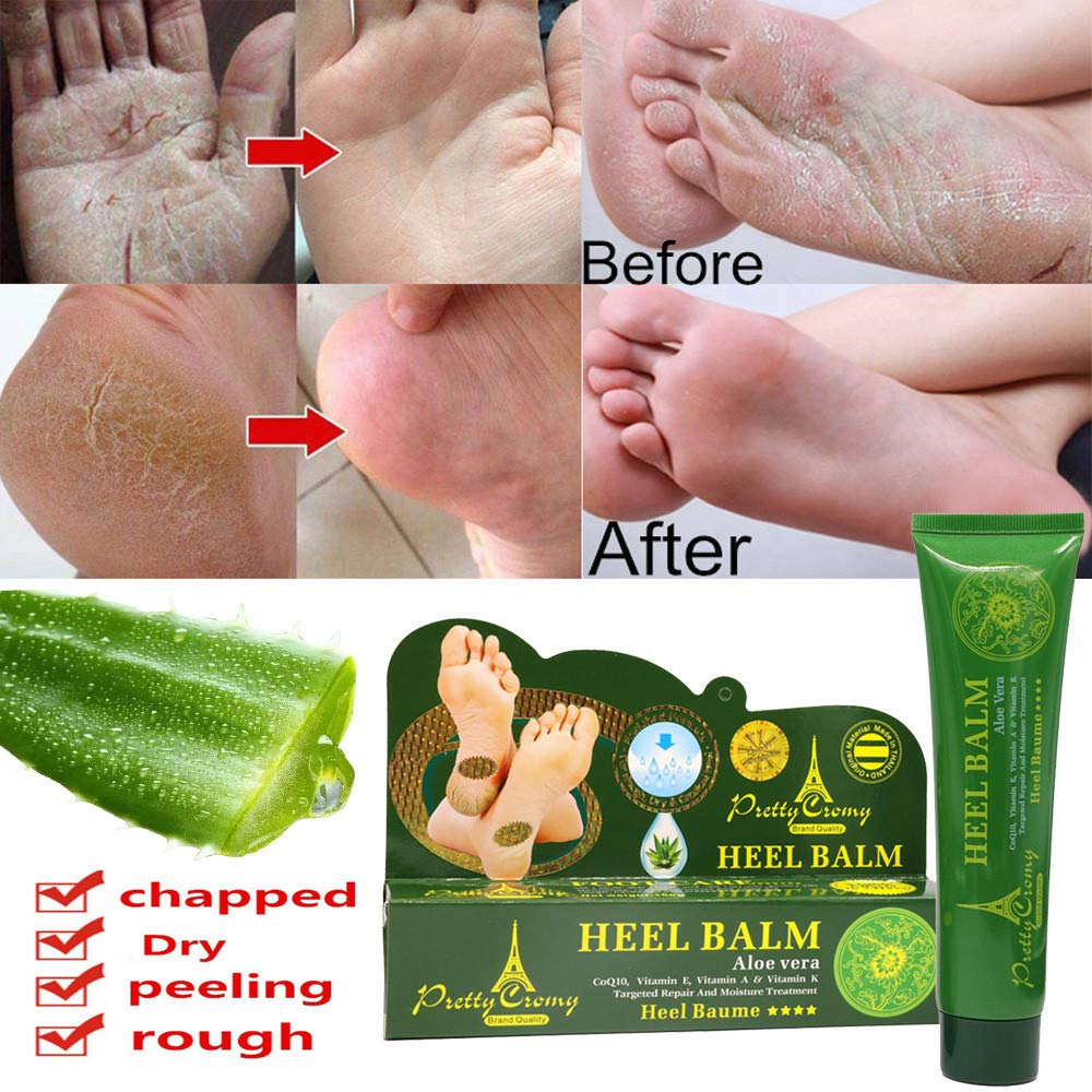 Birdfly Women Hand and Foot Skin Repair Cracked Heel Balm for Rough Dry & Chapped Feet Aloe Remove Exfoliating Calluses Beauty Care Peeling Cream