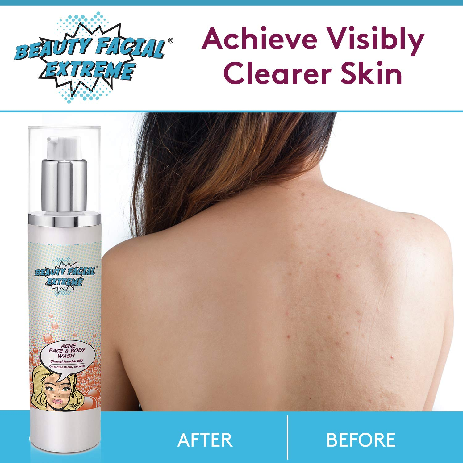 Benzoyl Peroxide 5% Acne Cleanser- Clinically Proven Wash to Fight Acne  Bacteria on Contact