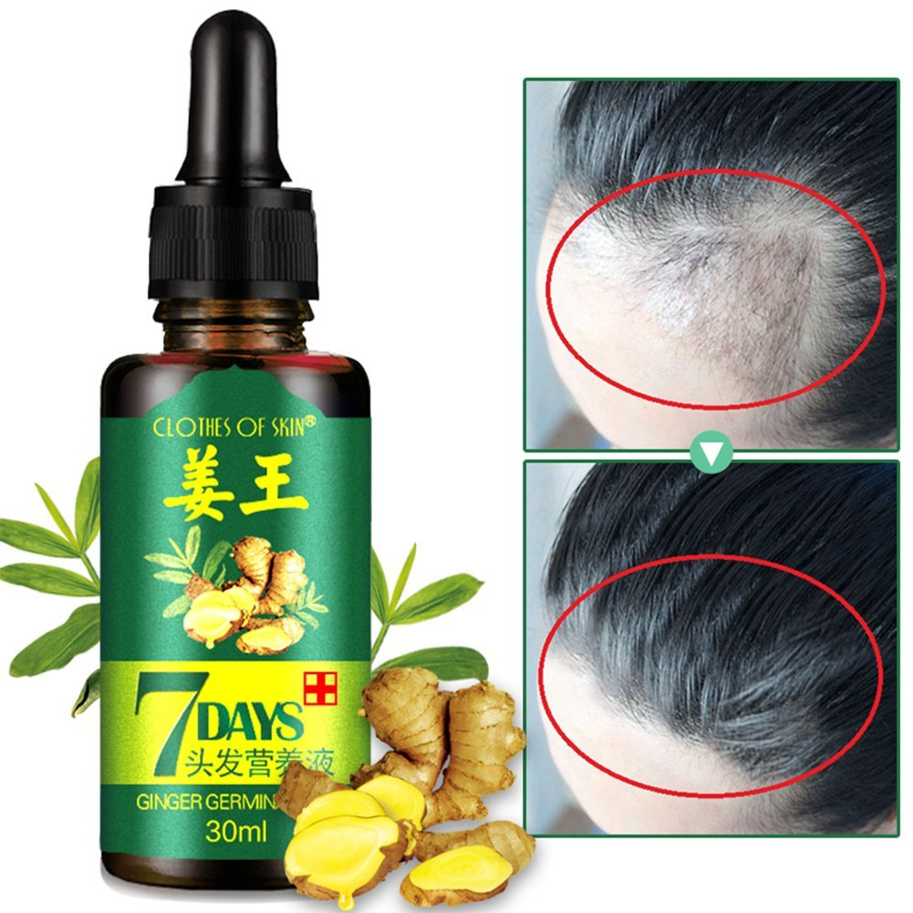 Ginger Germinal Oil,2020 Hair Growth Ginger Essential Oil Hair Growth Hair Loss Treatment Hair Growth Serum for Men and Women