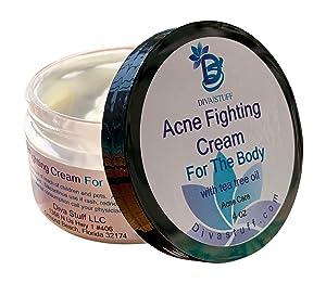 Acne Fighting Cream For The Body, 4oz Jar