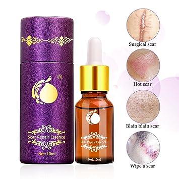 Scar Repair Oil, Sky-shop Anti Aging Scar Healing Lavender Facial Oil  Repairs Damaged Skin, Scar
