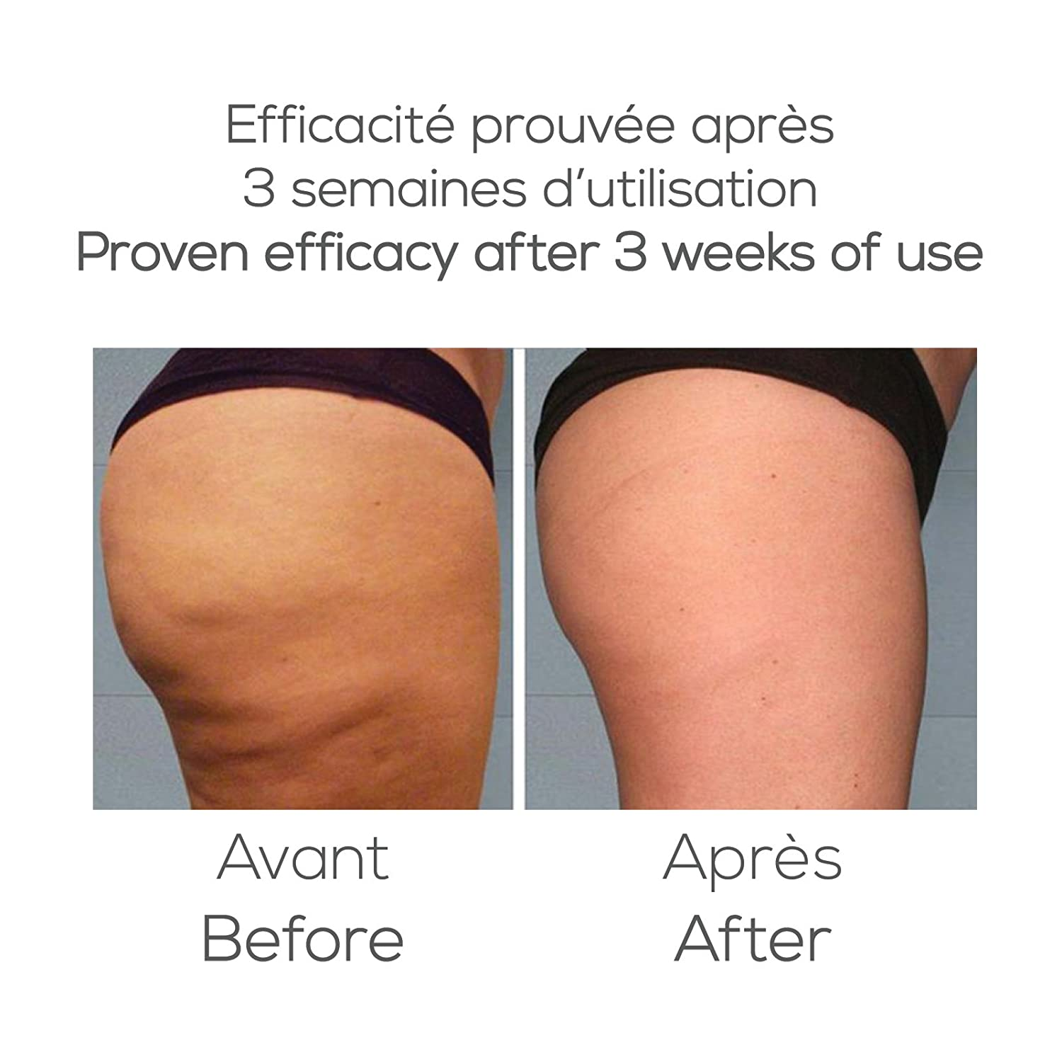 ventouse anti cellulite avant apres