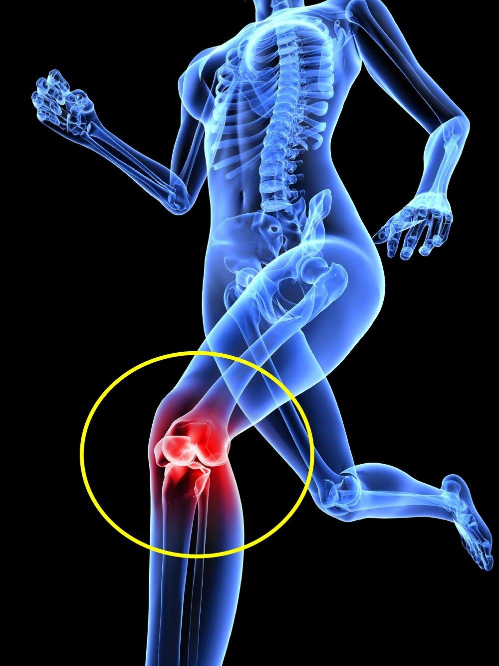 Amazon neobracex patella tendon strap knee pain relief amazon neobracex patella tendon strap knee pain relief patella stabilizer for jumpers knee running tennis osgood schlatter tendonitis ccuart Images