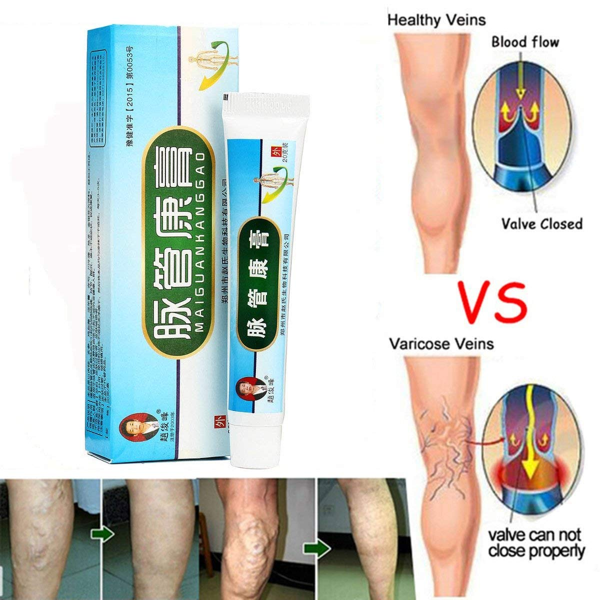 How to treat inflammation and varicose veins