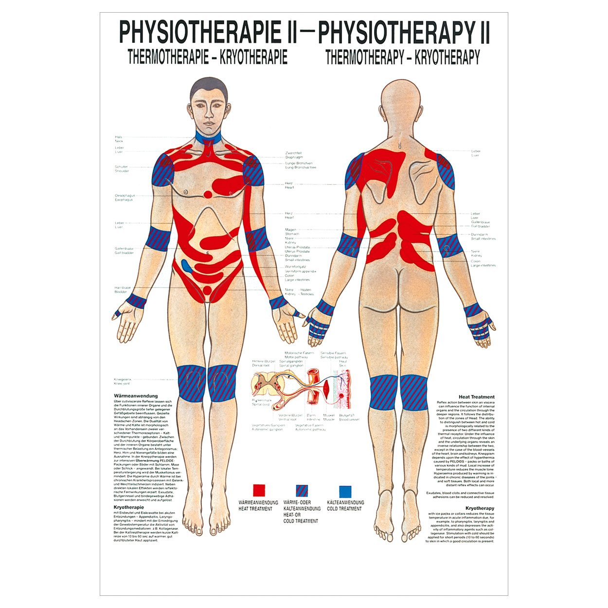 Anatomisches Poster 'Thermotherapie', 70x50 cm
