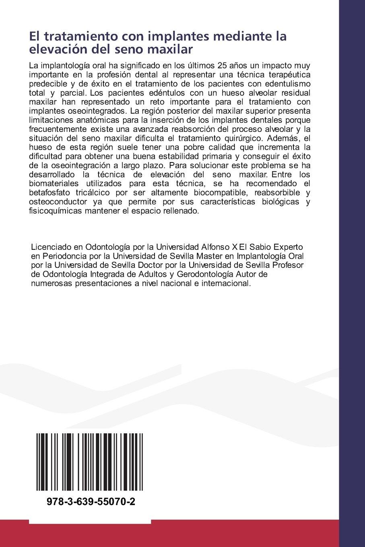 El tratamiento con implantes mediante la elevación del seno maxilar: Utilización del betafosfato tricálcico (Spanish Edition)