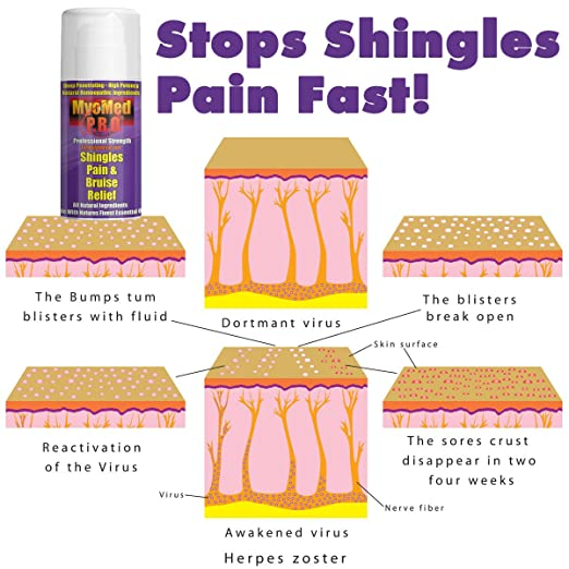 what can be done for shingles nerve pain