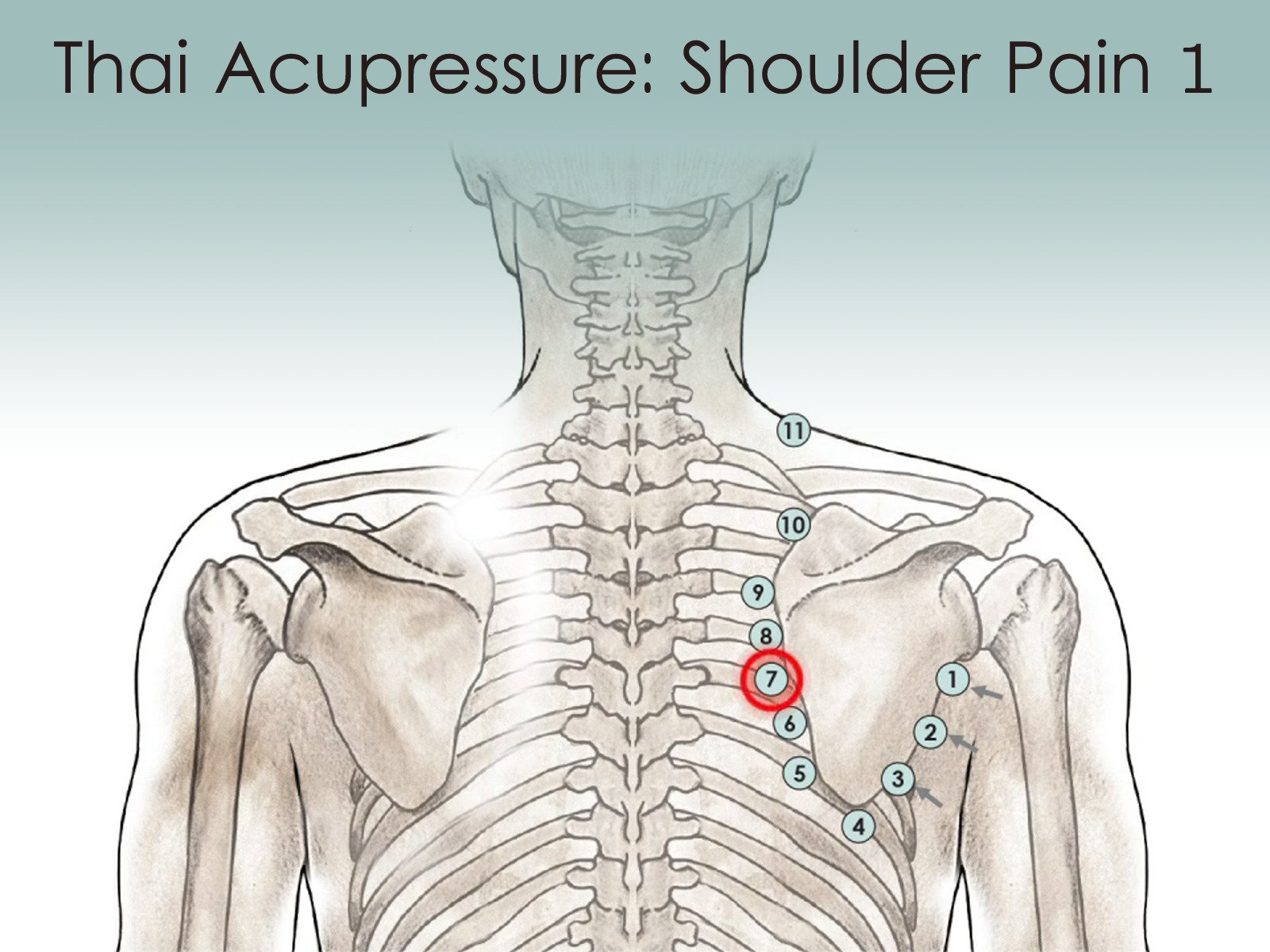 Treatment Routine 11 - Pain at the midpoint of the inner edge of the shoulder blade by