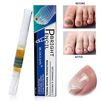 Fungus Stop Fungal Nail Gel Anti Treatment Effective Against