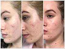 $14 99 Mederma HEALTH_PERSONAL_CARE health_and_beauty acne scar