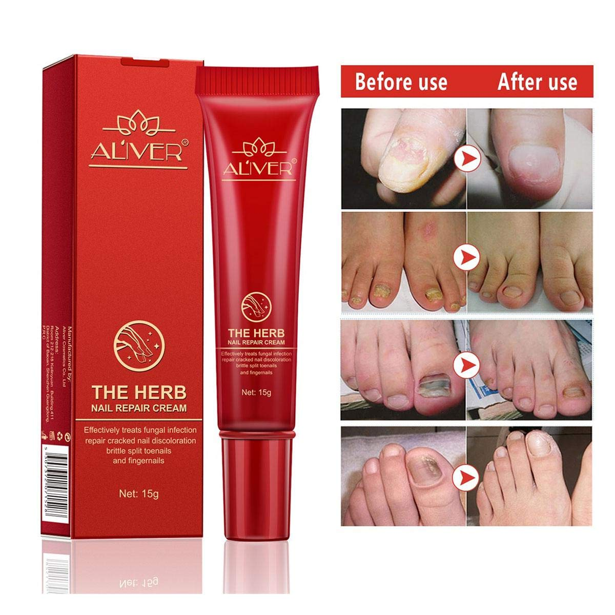 Fungus Stop, Foot Nail Cream with Antifungal Treatment Fits for Nails Discolored Damaged Cracked Rough Brittle Spilt, Herb Nail Fungus Treatment for Women Men Elder leegoal
