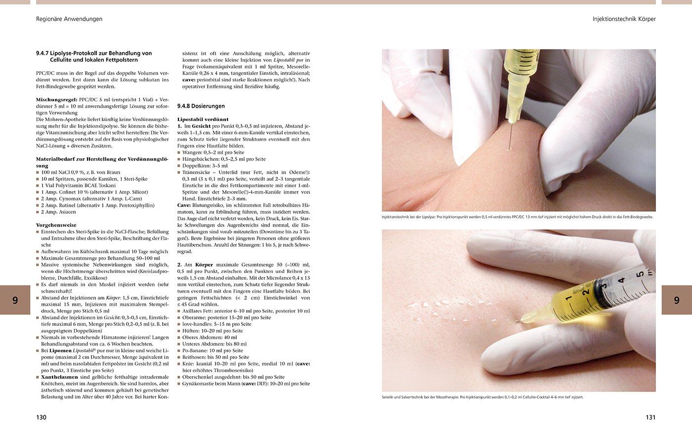 Bildatlas der ästhetischen Mesotherapie: 9783868673296: Amazon.com ...