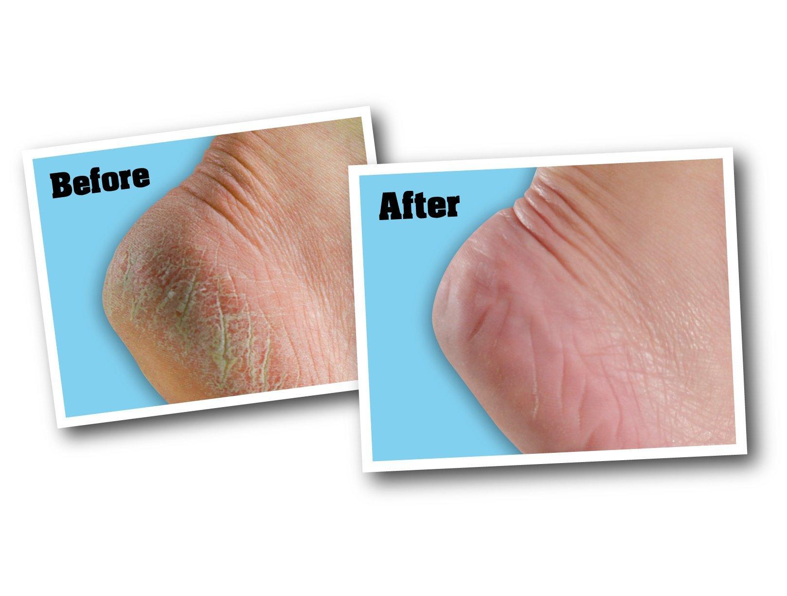 O'Keeffe's K0280016 K0280004-2 Healthy Feet Foot Cream Tube (2 Pack), 3 oz by O'Keeffe's (Image #3)