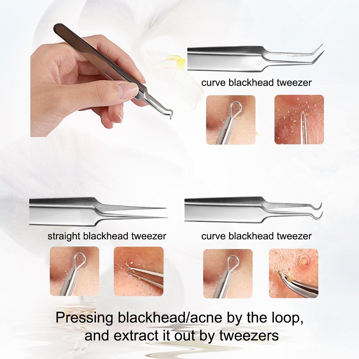 AMTOK Blackhead Remover Kit Curved Blackhead Tweezers Kit Pimple Comedone Extractor Tool Set Treatment for Blemish , Zit Popper (Tweezers Kit 5pcs)
