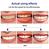 Teeth Whitening Pen Kit(5 Pens), Safe 35% Carbamide Peroxide Gel, Effective, Painless, No Sensitivity, Easy to Use, Travel-Friendly, 20+ Uses, Beautiful White Smile, Natural Mint Flavor