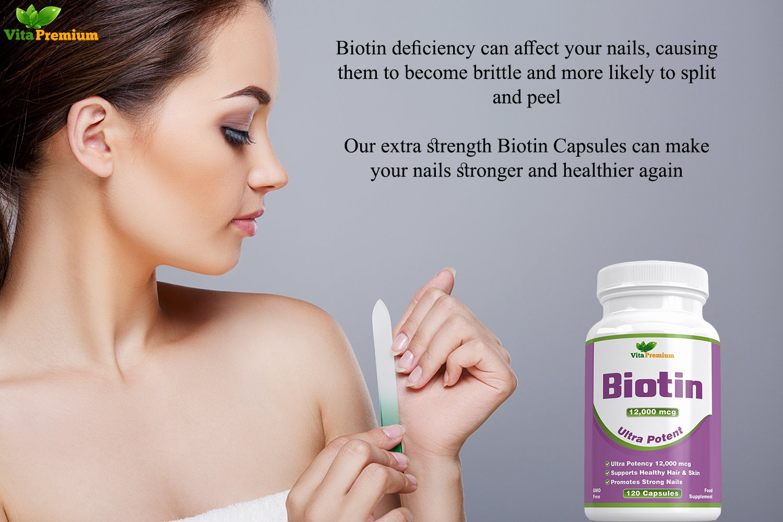 Suplemento de Biotina Para el Crecimiento del Pelo MÁXIMA POTENCIA 12000 mcg, 120 Cápsulas (Suministro Para 4 Meses) - VitaminaB7 Para Conseguir un ...