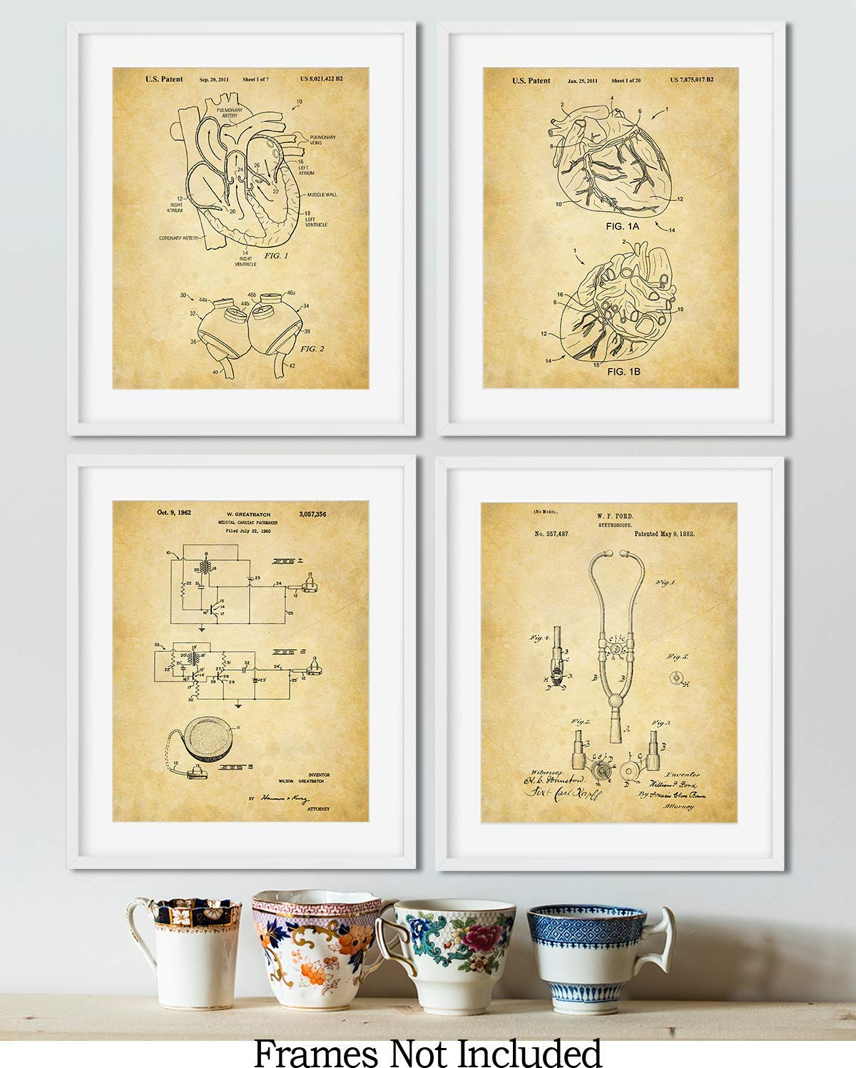set of Four Unframed Cardiology Patent Wall Art Prints 8x10 wall art decor for cardiologists
