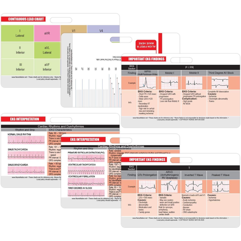 EKG Horizontal Badge 6 Card Set, ECG Telemetry Cards with EKG Ruler, Electrocardiogram Rhythm Interpretations, Common Cardiac Findings, STEMI Leads, 12 Lead EKG Placement (Bonus Cheat Sheets)