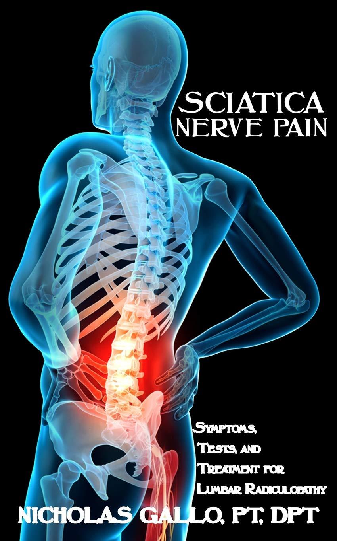 Sciatica Rockville MD Pain Arthritis Relief Center