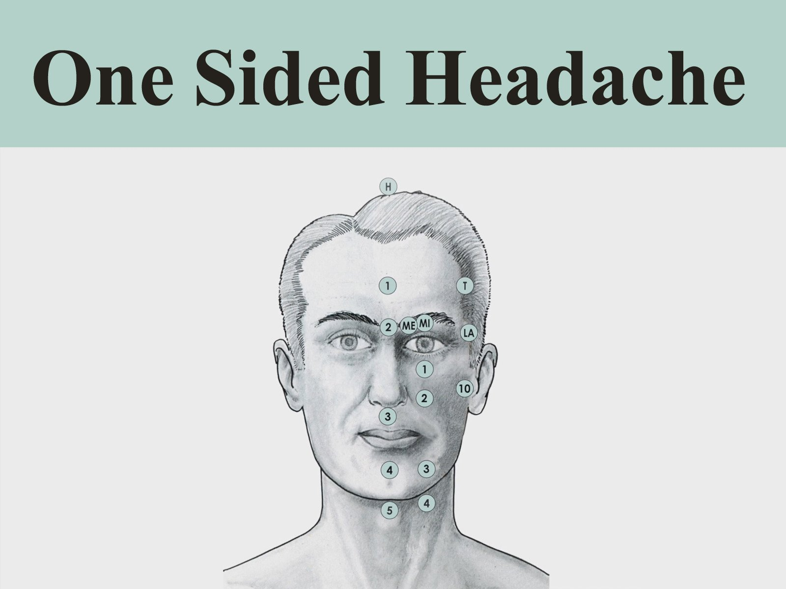 Treatment Routine 2: One-Sided Headache by