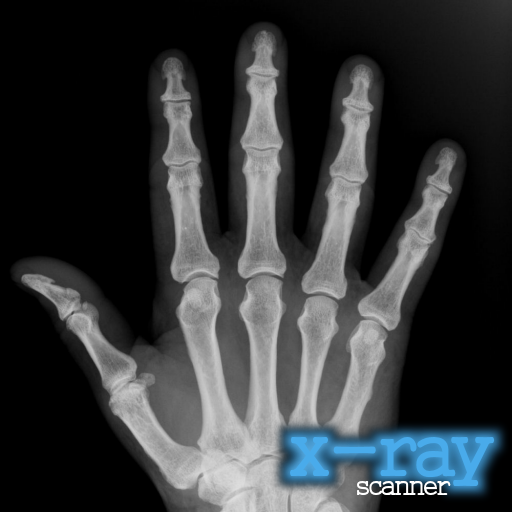X-Ray Scanner (Ad-Free) - Ray Ad