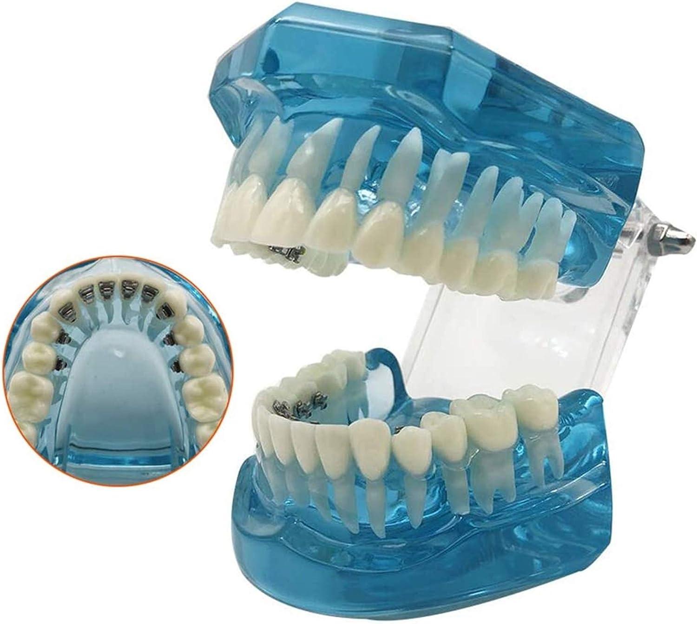 LBYLYH Modelo de enseñanza médica Modelo Dientes dentales Modelo de enseñanza - Modelo ortodóntico - Modelo de Dientes - Modelo de Soporte Lingual intraoral Dental - Corrección de Sigilo