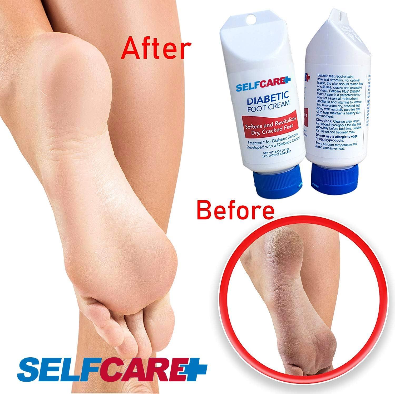 Amazon Com Diabetic Foot Cream Revitalize Dry Cracked Feet