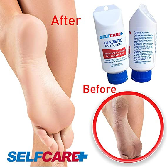 Amazon Com Diabetic Foot Cream Revitalize Dry Cracked Feet Help Promote Better Circulation Leaves Hands Legs Body Feeling Soft Smooth Patented Lotion 5