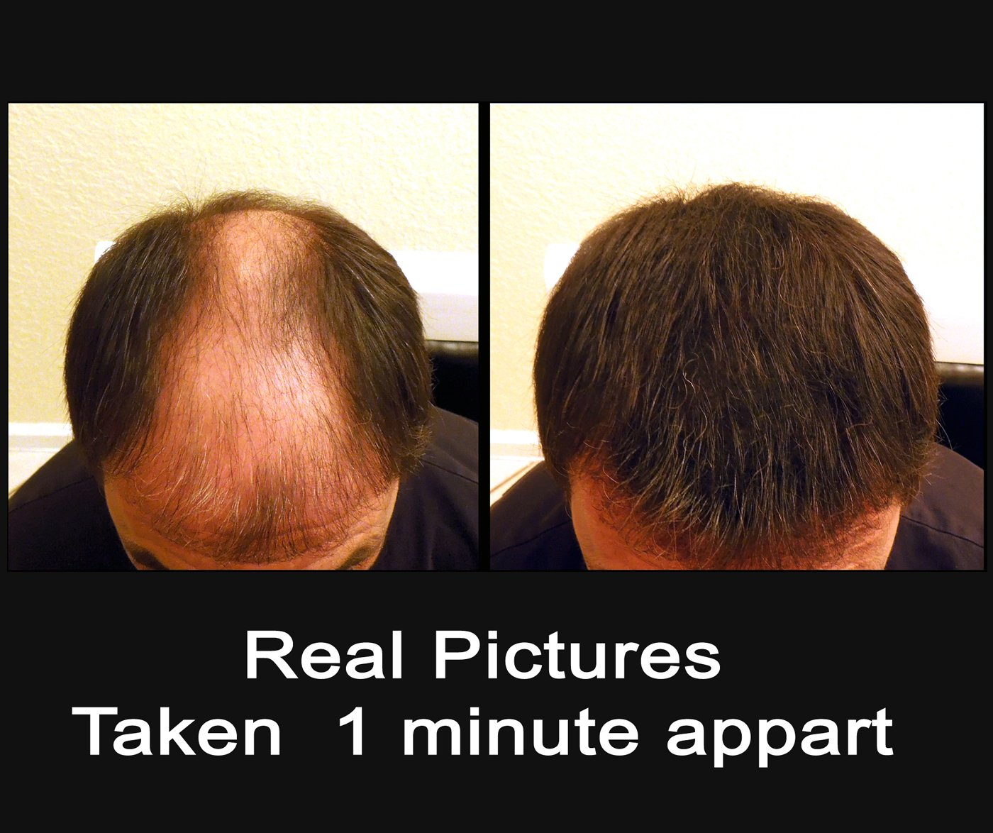 Samson Hair Building Fibers Hair Loss Concealer BLACK XL REFILL 100gr Made in USA Available Worldwide by SamsonHair