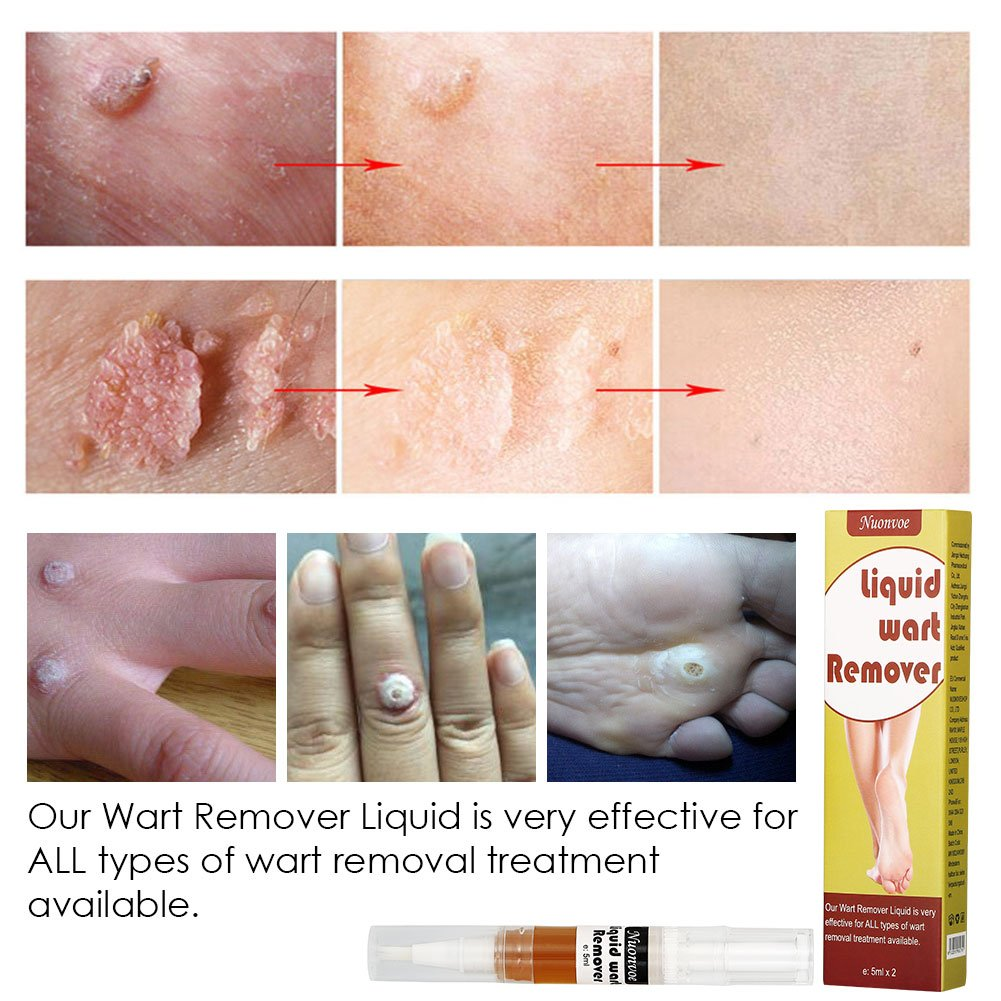 Wart Remover, Plantar Wart Removal, Corn Callus Remover, Wart Removal Pen  With Natural Ingredients,