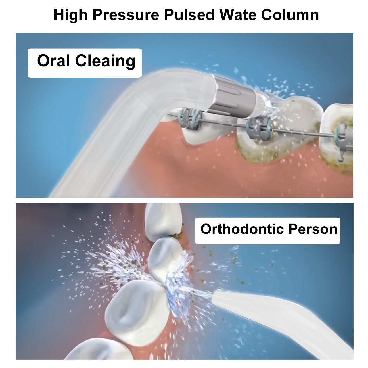 Water Flosser, XPretty 600ml Reservoir Professional Family Oral Irrigator with Adjustable Pressure Setting, Water Pick Dental Flosser with 7 Tips For Braces, Implants, Bridges, Global Voltage by XPretty (Image #6)