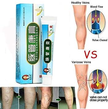 varice care cauzează dureri de genunchi de ce primim varice