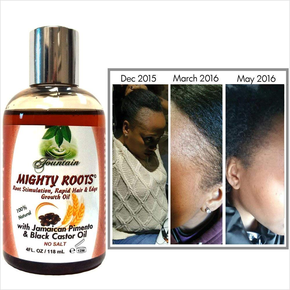 Fountain Mighty Roots Moisturizing Kit Rapid Edge and Hairline Growth 8 Ounces