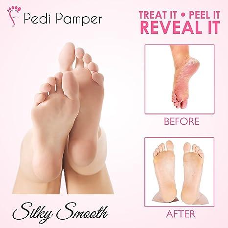 2 Pairs Foot Peel Mask (peel hard, dry, dead skin) - Baby Soft Feet in 1  Week, Exfoliating Booties for Peeling