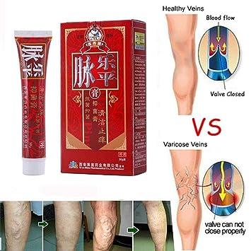 crème pour les jambes varices